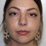 Rhinoplasty case study 1 - Rhinoplasty case study 1 - Post-operative