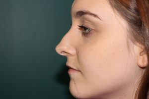 Rhinoplasty case study 2 - Preoperative