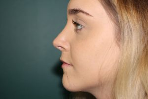 Rhinoplasty case study 2 - Post-operative